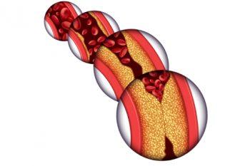 Was ist eine Herzerkrankung?